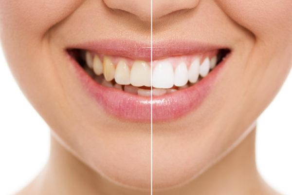 Teeth Whitening in Aspen, Colorado