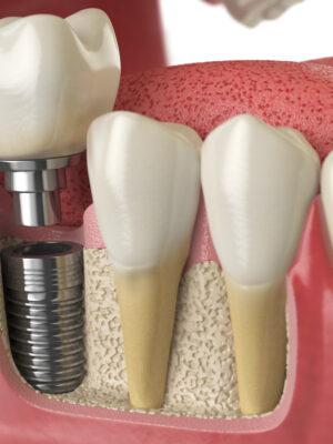 When do I need restorative dentistry?